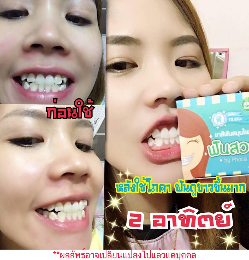 ยาสีฟันโภคา, ยาสีฟันสมุนไพรเข้มข้น